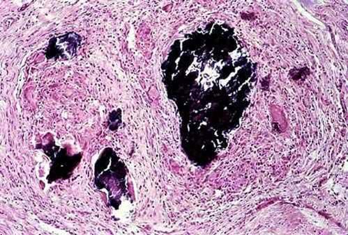 صورة (39) : حبيبوم سل فى عضلات رحم بقرة , التركيب النسيجي المرضي