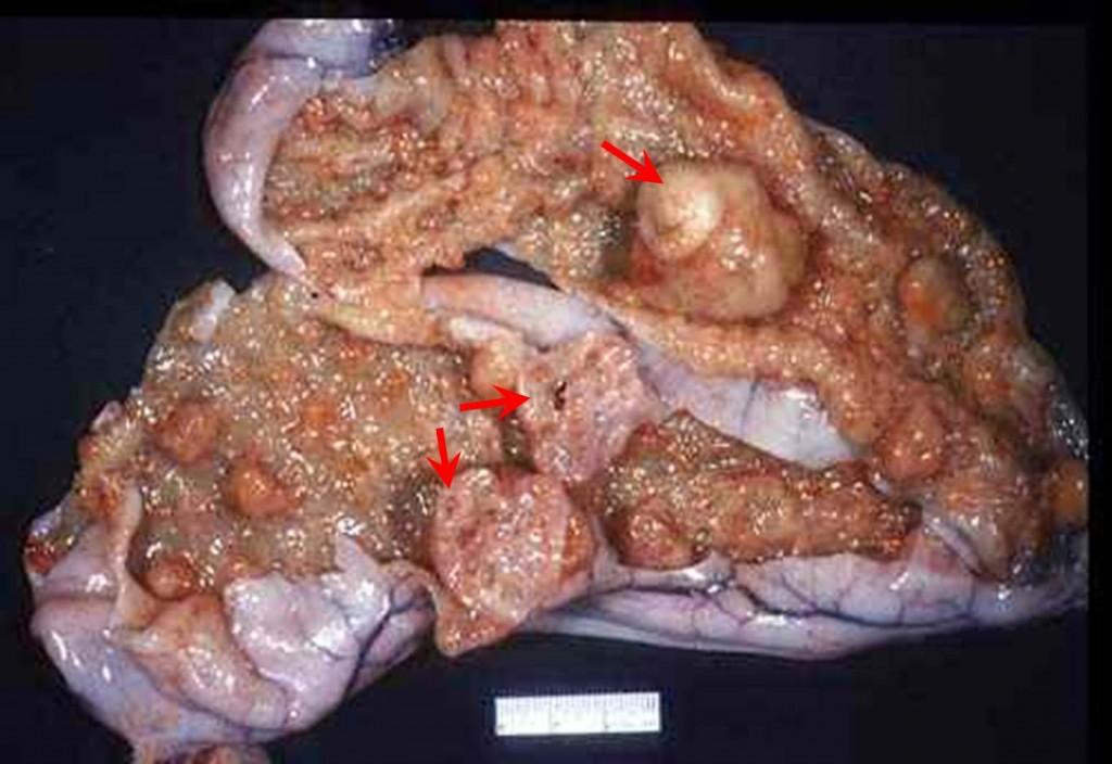 صورة (42): رحم قطة فرط النمو السليلي المتحوصل , جدار الرحم متسع وغليظ - تبرز عديد من العقد مختلفة الأحجام من المخاطية
