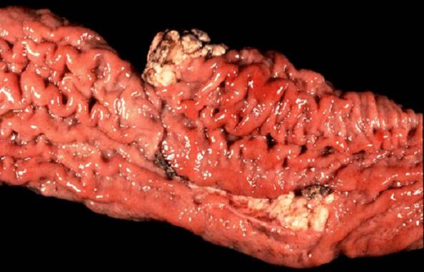 صورة (2) paratuberculosis : أمعاء دقيقة لبقرة التغلظات والتعرجات النمطية لشبيه الدرن