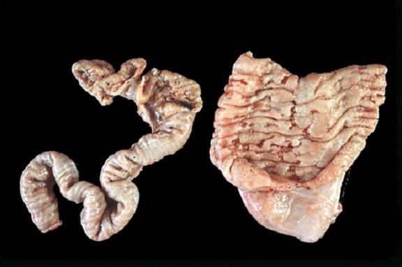 صورة (3) paratuberculosis : شبيه الدرن في الامعاء الدقيقة لغنمة المخاطية متغلظة ومتعرجة