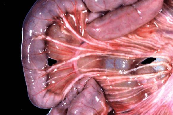 صورة (4) paratuberculosis : مساريقا الامعاء الدقيقة لغنمة (شبيه الدرن البقري) الاوعية الليمفاوية للمساريقا متغلظة وبها عقد (التهاب الاوعية الليمفاوية)