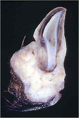 Amorphus globosus : مشيمة بقرية كتله كبيرة مستديرة بها سنه واحدة
