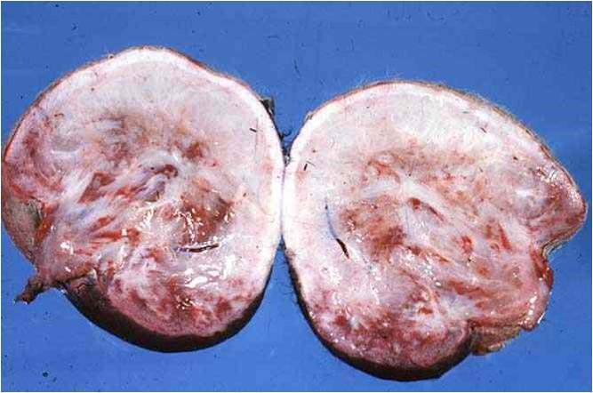 Amorphus globosus : مشيمة بقرية كتله من الأنسجة عديمة الشكل متصلة بالمشيمة