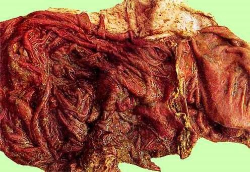 الإسهال الفيروسي البقري Bovine Viral Diarrhea: التأكلات علي الحروف المحتقنة و المتوذمة للمنفحة