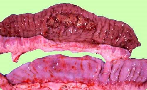 الإسهال الفيروسي البقري Bovine Viral Diarrhea : موات وفقدان لطع باير . هبوط في خطوط المخاطية نتيجة فقدان النسيج اليمفاوي . أحتقان المصلية.