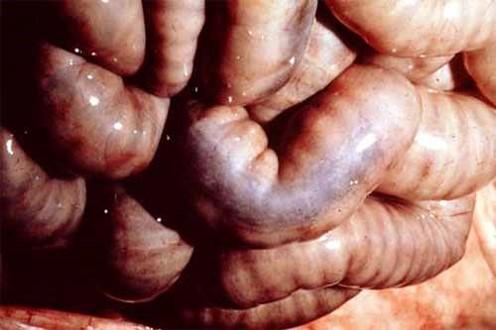 الإسهال الفيروسي البقري Bovine Viral Diarrhea : السطح المصلي للأمعاء يظهر موات لطع باير مع تلوين أسود مزرق (داء الميلانين الكاذب).