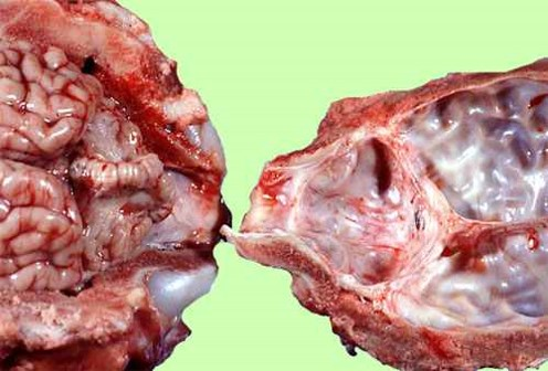 الإسهال الفيروسي البقري Bovine Viral Diarrhea : نقص نمو المخيخ في عجل جنين