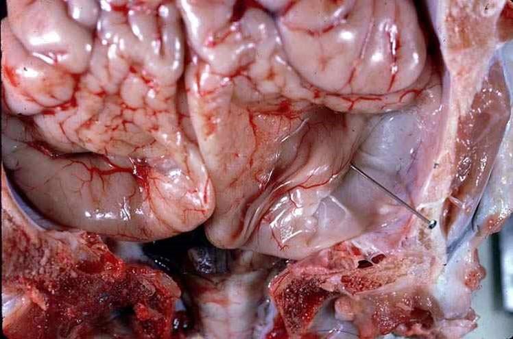 الإسهال الفيروسي البقري Bovine Viral Diarrhea : غياب كامل للمخيخ
