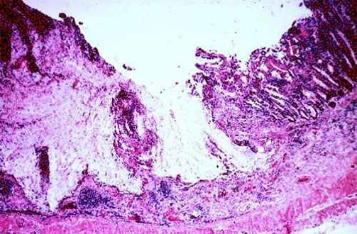 الإسهال الفيروسي البقري Bovine Viral Diarrhea : موات وفقدان لطع باير