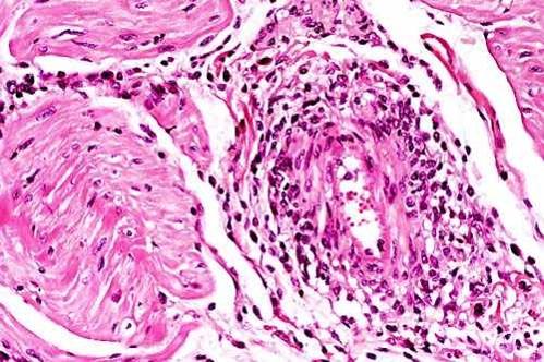 الإسهال الفيروسي البقري Bovine Viral Diarrhea : تخلل الليمفاويات وقليل من النسيجيات و نادرا المتعادلات في و حول جدار الوعاء الدمي في القلب
