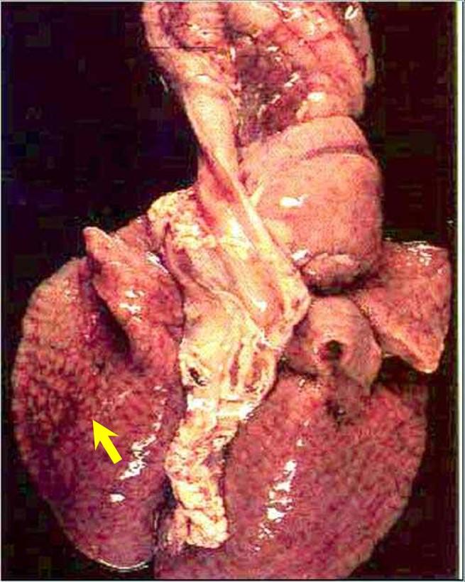 Bacterial abortion :Brucellosis عجل مجهض نتيجة الاصابة بالبر وسيلا : التهاب شعبي رئوي ( منظر الظلط المرصوف)
