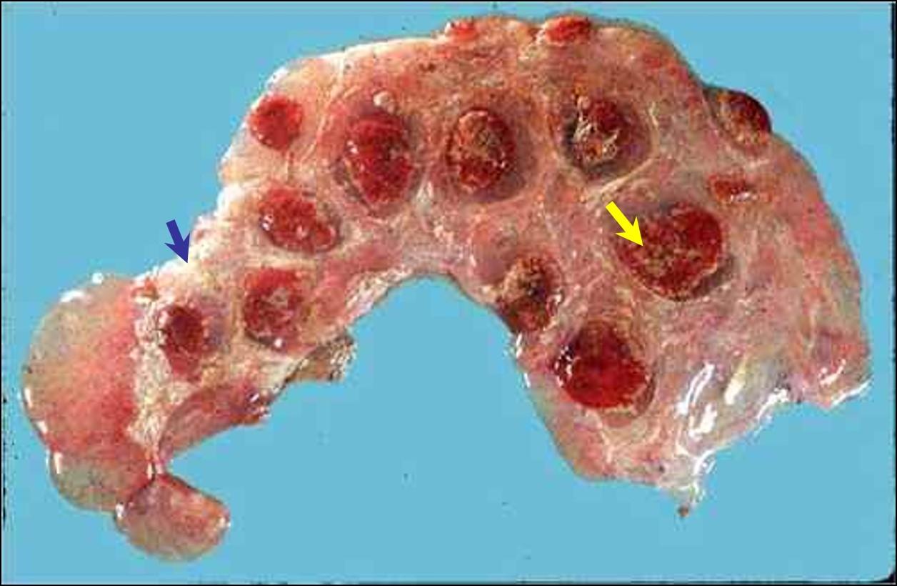 Bacterial abortion : Brucellosis مشيمة نعجة مصابة بالبروسيلا : بؤر مواتية مبعثرة في الفلقات . التهاب ليفيني للمساحات بين الفلقات