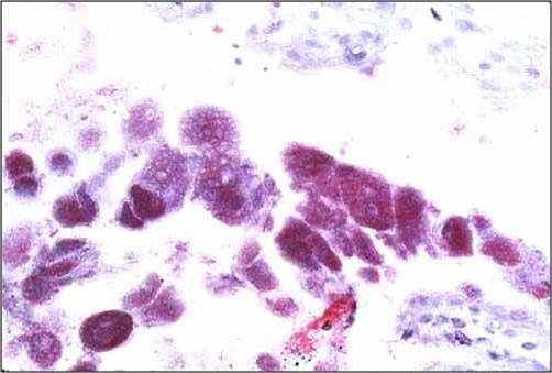 Bacterial abortion : Brucellosis مشيمة بقرة مصابة بالبر وسيلا : العديد من ميكروبات البروسيلا في خلايا الامهات الغذائية(trophoblastic cells)
