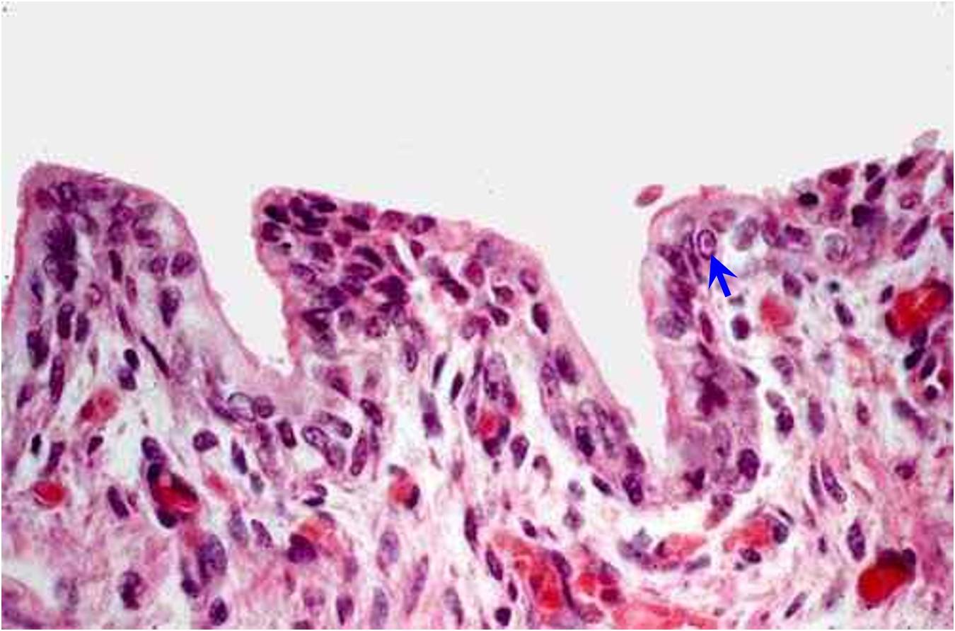 Viral abortion: Equine rhinopneumonitis طلائيات القصبة الهوائية المصابة بالتهاب الأنف و الرئة الخيلي :انتشار الأجسام الاحتوائية في الخلايا الطلائية