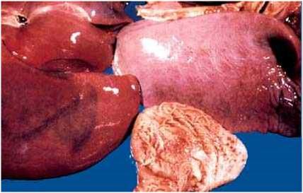 Viral abortion: Equine viral arteritis رئة و كبد و معدة مهر مصاب بالتهاب الشرايين الخيلي : استسقاء الرئة و أنزفة دبوسية على حافظة الكبد و مخاطية المعدة