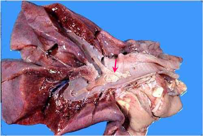 Viral abortion: Equine rhinopneumonitis : قصبة هوائية و رئة لجنين مصاب بإلتهاب الأنف و الرئة الخيلي : جلطة ليفينية (Fibrin clot) في تجويف القصبة الهوائية