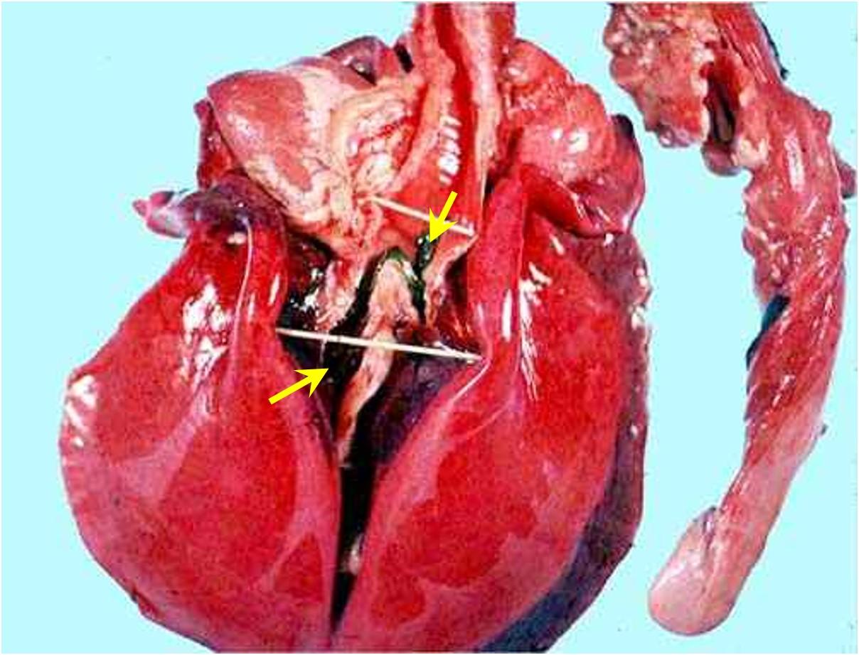 Viral abortion: Equine rhinopneumonitis رئة لجنين مصاب بإلتهاب الأنف و الرئة الخيلي : سدادة من الليفين عند تفرع القصبة الهوائية