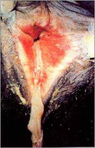 فرج و مهبل بقرة Granular vulvovaginitis