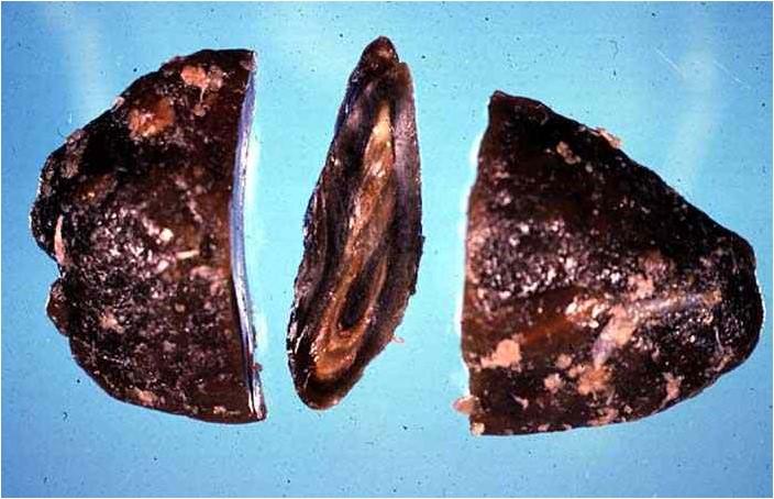 Hippomanes : مشيمة الخيـــول كتله بيضاوية ، ناعمة، مطاطية ذات طبقات وجدت فى تجويف اللقانقي