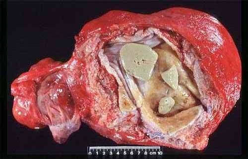 جنين متهتك Macerated fetus في رحم بقرة