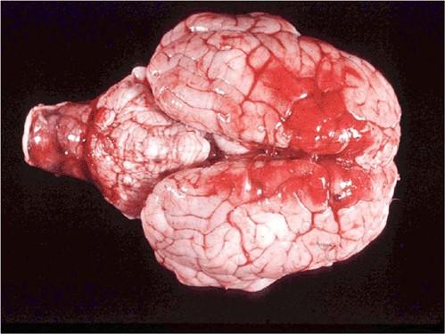 Neospora مخ عجل بقري مجهض بداء النيوسبورا التهاب المخ الحبيبومى مع مساحات كبيرة من النزيف في نصفي كرة المخ.عقد على المخيخ