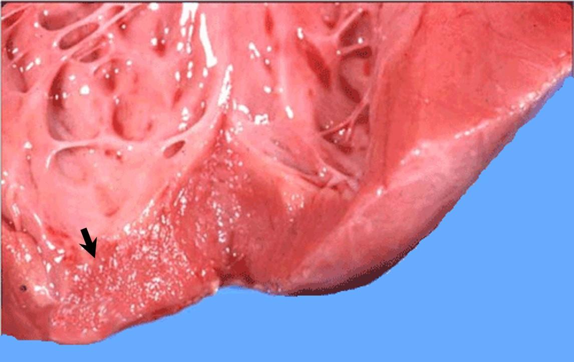 Neospora قلب عجل مجهض بداء النيوسبورا التهاب القلب البيني البؤري. بؤر باهتة مبعثرة في عضلة القلب