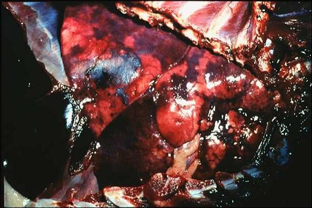 Peste des petitis ruminants طاعون المجترات الصغيره : مراحل الالتهاب تشمل كل الرئة