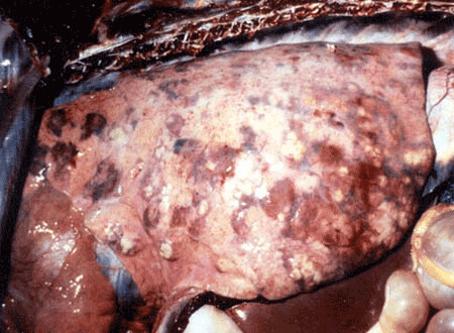 glanders: سقاوة في حصان - انتشار حبيبومات السقاوة الصديدية المحاطة بمنطقة من فرط الدم خلال كل الرئة