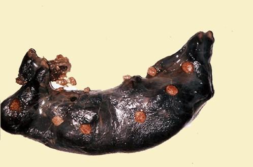 إجهاض الطفيليات : Toxoplasmosis داء المقوسات في جنين ومشيمة نعجة عديد من البؤر المواتية الدبوسية في فلقات المشيمة والنسيج البين فلقي طبيعي