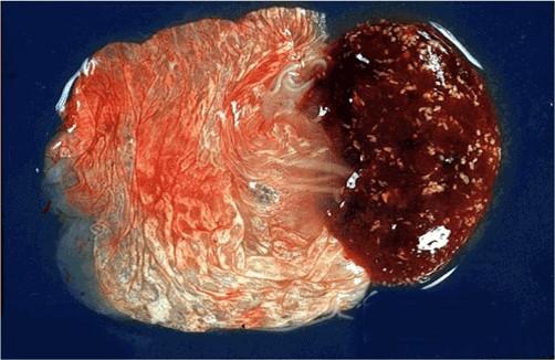 إجهاض الطفيليات : Toxoplasmosis داء المقوسات في مشيمة نعجة العديد من البؤر الدبوسية في الفلقات