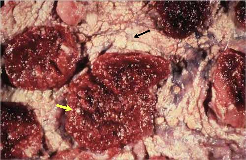 coxiella burnetii رحم نعجة مصابة بالكوكسيلا بيرنيتي : وقليل في اللحيمات(caruncles) بؤر عديدة صفراء في المسافات بين اللحيمات