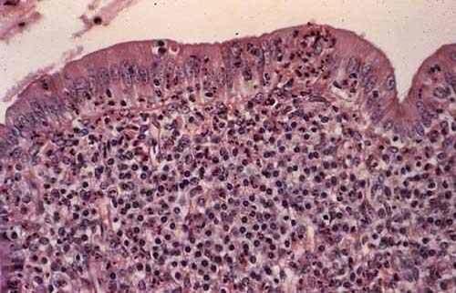 الفحص الميكروسكوبي لبطانة رحم بقرة Histopathology of endometritis