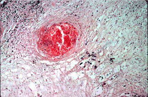 fungal abortion التهاب المشيمة الفطري في بقرة تجلط وعائي واستسقاء مع خيوط الفطر المبعثرة