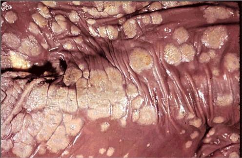 fungal abortion التهاب الجلد الفطري في عجل داء الرشاشات .... لويحات غليظة باهتة اللون على الجلد