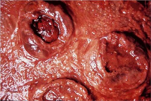 fungal abortion التهاب المشيمة الفطري في بقرة تورم حافة الفلقات شكل مميز للإجهاض الفطري