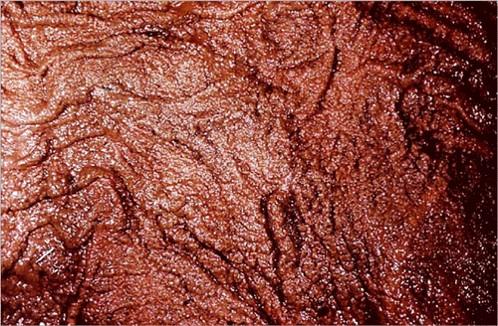 fungal abortion التهاب المشيمة في فرسة تبدأ الاصابة المبكرة للمشيمة بجوار عنق الرحم