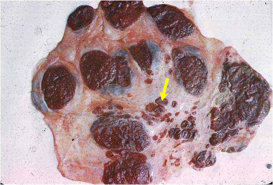 internal transverse placenta مشيمة بقري: فلقات (cotyledons) طبيعية عديدة حمراء داكنة ينتشر بينهم فلقات أصغر وأقل في العدد.