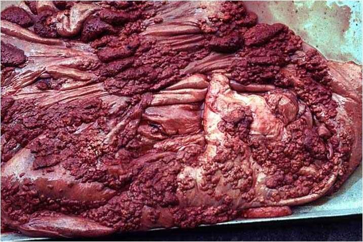 internal transverse placenta تكاثر حلمات المشيمة لتغطي تماما الغشاء المخاطي للرحم بين اللحميات (caruncle) المبعثره