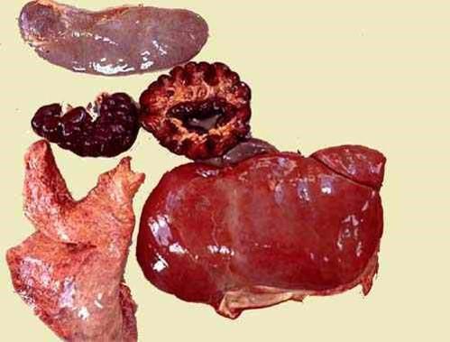 liptospira عجل مجهض نتيجة للإصابة باللولبيات الخيطية : التهاب الكلى البؤري البيني مع داء الكلى الهيموجلوبينى واستسقاء رئوي