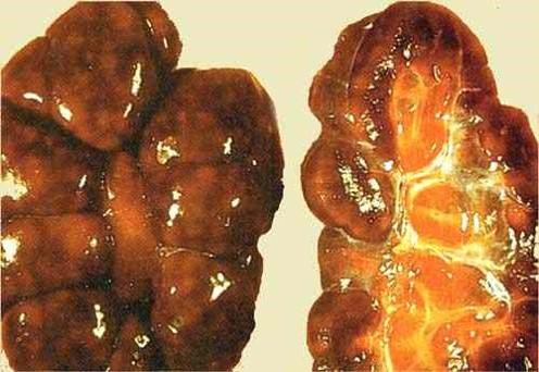 liptospira عجل مجهض نتيجة للإصابة باللولبيات الخيطية : التهاب الكلى البؤري البيني وداء الكلى الهيموجلوبينى