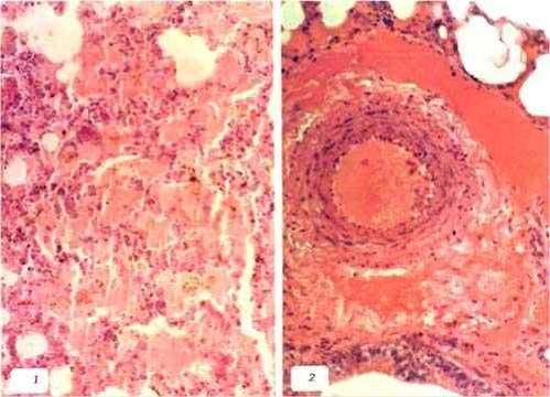 liptospira عجل مجهض نتيجة الاصابة باللولبيات الخيطية : إستسقاء رئوي وتحلل دموي داخل الاوعية