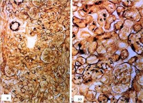 liptospira كلية عجل مجهض نتيجة الاصابة باللولبيات الخيطية : ميكروبات اللولبيات الخيطية في الإنبيبات الملتوية الكلوية (صبغة الفضة)