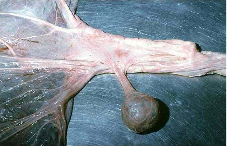 مشيمة الخيول placenta كتلة عظمية على عنق الحبل السرى