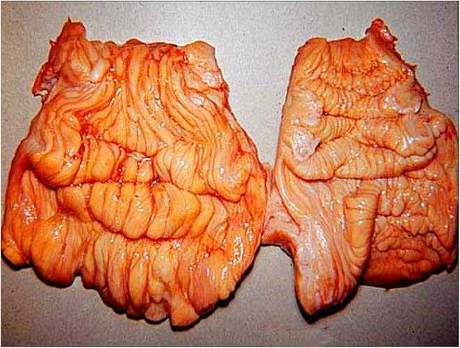 عنق رحم بقرة , التهاب عنق الرحم Cervacitis
