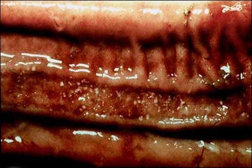 rinderpest طاعون بقرى لطخة باير متآكلة . البؤر البيضاء فى التآكل تمثل مواد مائتة