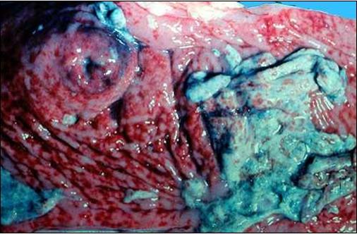 rinderpest طاعون بقرى المعى الأعور عند صمام وصلة الأعور باللفائفى :تمثل المساحات الحمراء الداكنة تآكلات مخاطية الأعور. بعض المساحات مغطاة بطبقة من الليفين يمكن رؤية بصمات التآكلات على الطبقه أعلى المساحات المنعكسة من الليفين.