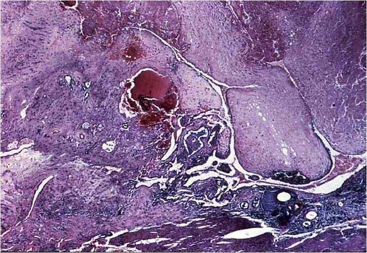 رحم كلبة : كتل من مدامج أشباه خلايا الأمهات الغذائية (trophoblast like cells) الى اليسار - خلايا ذات سيتوبلازم محب لصبغة الأيوسين والى اليمين تظهر مواد ليفية ايوسينيه