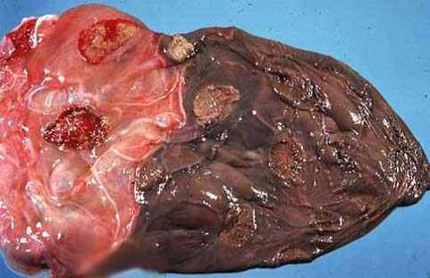 vibriosis مشيمة بقرة مصابة بالشولات : خط فاصل يحدد بين المشيمة المحتشية (infarcted) والطبيعية
