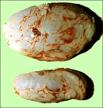 Malignant Catarrhal Fever الحمى النزليه الخبيثة : تضخم الغدة الليمفاوية قبل الكتفية - قارن مع الغدة الطبيعية