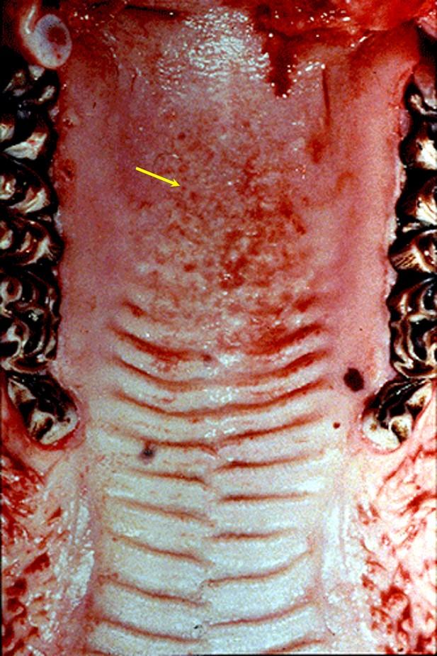 Malignant Catarrhal Fever الحمى النزليه الخبيثة : تأكلات على سقف الفم الطرى والصلب